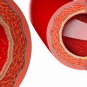 prevencionaterosclerosis